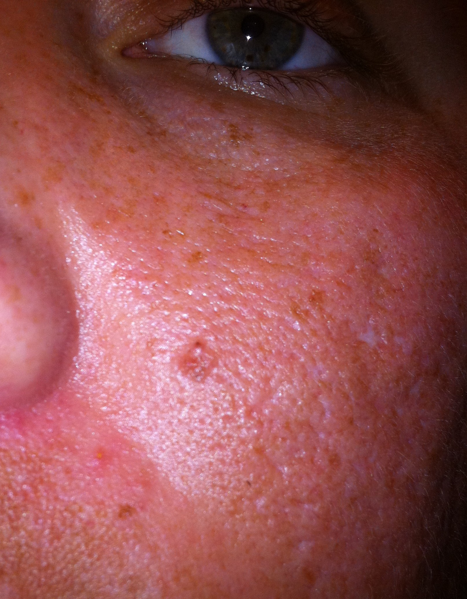 basal cell carcinoma   They ask how I do it. I was unaware ...